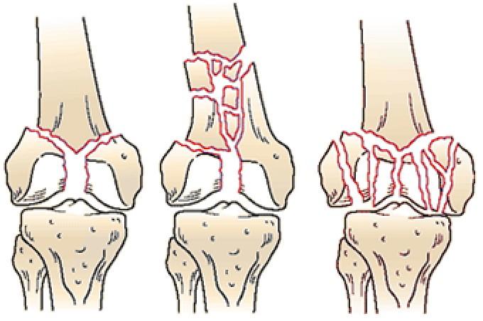 внутрисуставной перелом коленного сустава по мкб