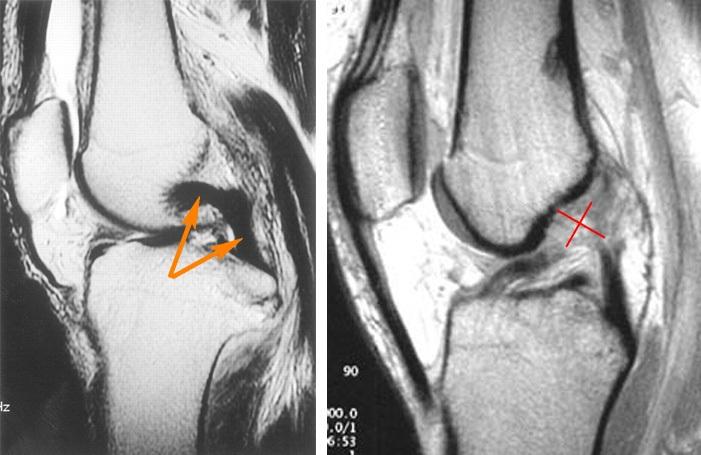 разрыв бокового коленного сустава