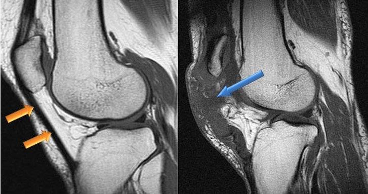 связки коленного сустава узи или мрт