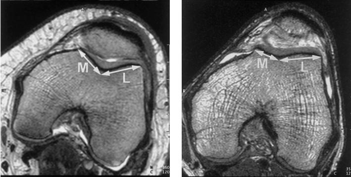 коленный сустав мрт или рентген