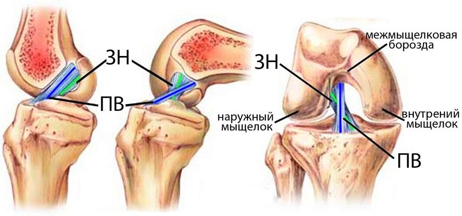 что делать если у меня нестабильность коленного сустава