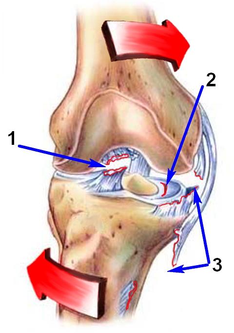 травмы растяжение связок коленного сустава