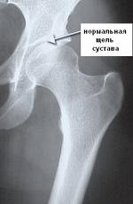 Нормальный тазобедренный сустав